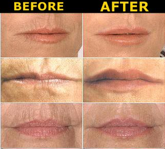 how to get rid of marionette lines around mouth